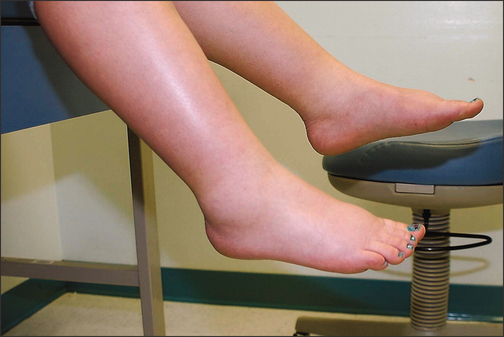 Ways to Reduce Feet Swelling During Pregnancy