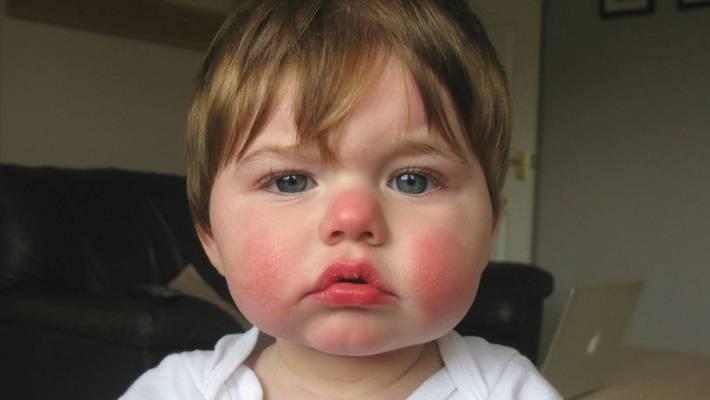slapped cheek syndrome